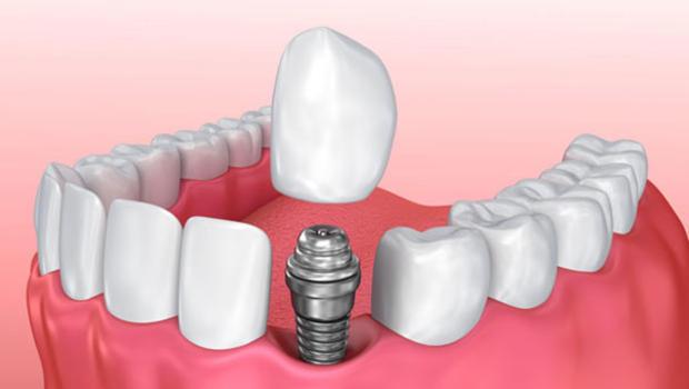 Dental implant tedavisi hakkında merak ettiğiniz her şey!