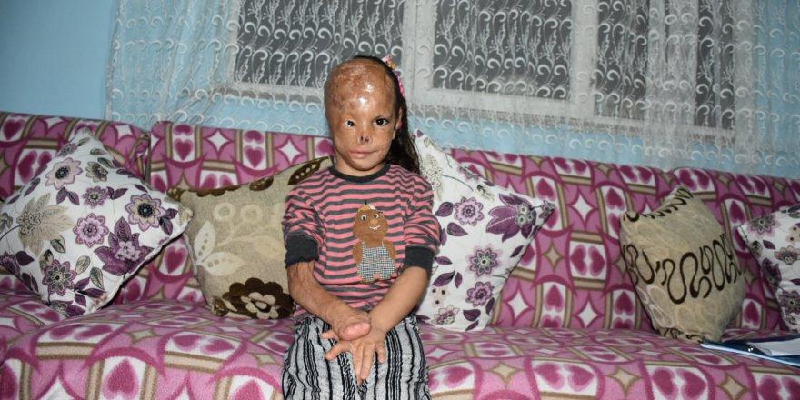 5 yaşındaki Dilara yardım bekliyor